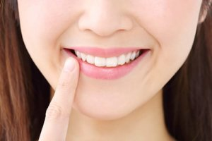 Young woman pointing to her teeth does't need to know what are lumineers